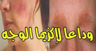صورة علاج اكزيما الجلد بالاعشاب , التخلص من الاكزيما بطرق طبيعية