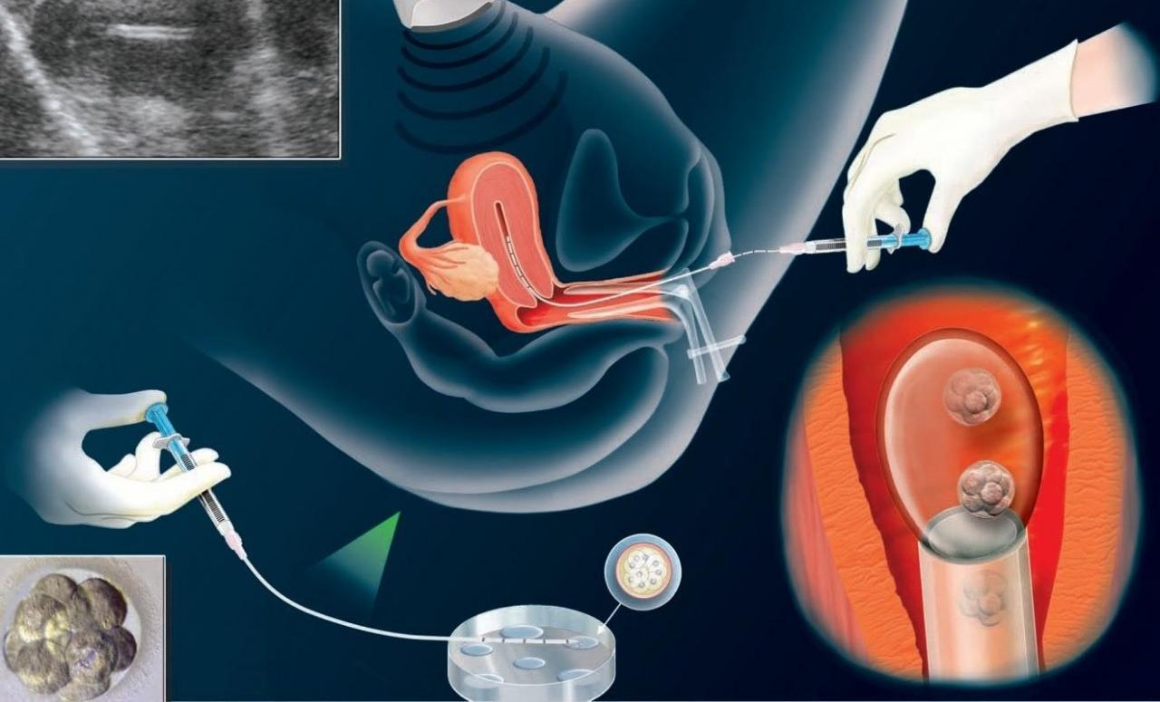 صورة اسباب الحمل الكيميائي , ومدي تشكيله خطرا على الافراد