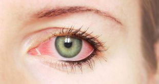 صورة سبب حرقان العين , احمي عينك باكثر من طريقة