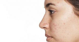 صورة كيف اتخلص من الحبوب في وجهي , للحصول علي بشرة نضرة