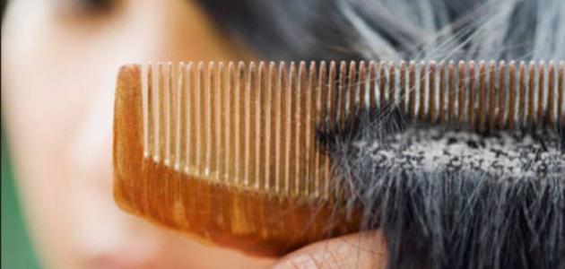 صورة كيفية ازالة القشرة من الشعر , القشرة البيضاء وانهائها