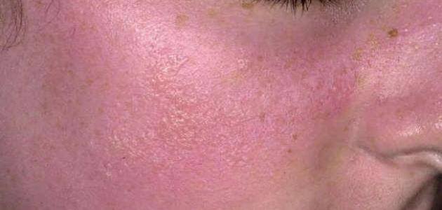 صورة علاج حساسية الوجه , طريقة التخلص من الحساسية المفاجاة