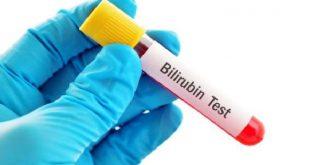 صورة اسباب ارتفاع البيليروبين , ما هو البيليروبين