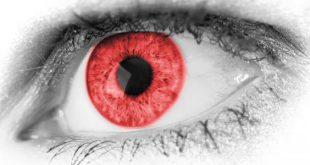 صورة ماهي اعراض العين , كيف اعرف اني مصاب بالعين