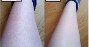 صورة طرق سريعة وسهلة تخفف الشعر تحت الجلد , ازالة الشعر تحت الجلد