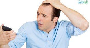 حل لتساقط الشعر عند الرجال