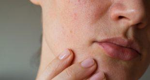 علاج حكة الوجه بالاعشاب